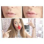 Dudak Dolgunlaştırıcı Aparat Süper Full Lips